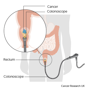 rectal cancer of)