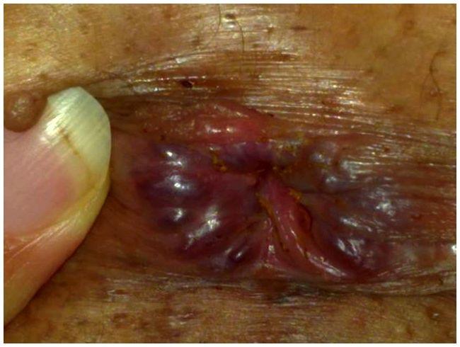 rectal cancer on skin