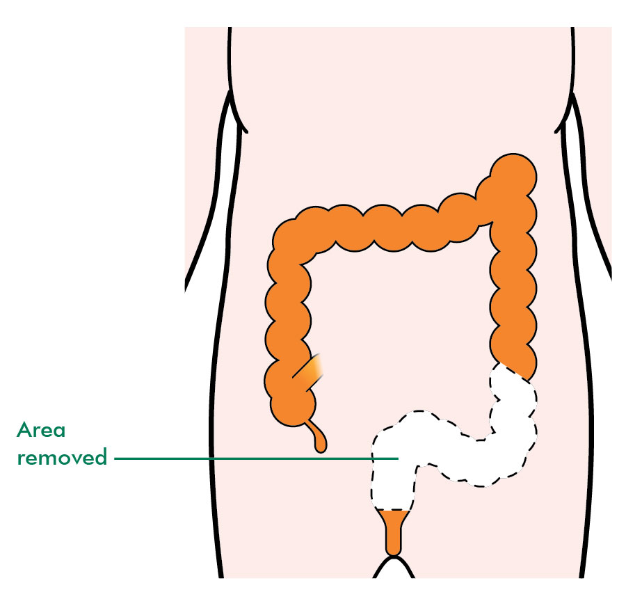 rectal cancer resection papiloma humano definition