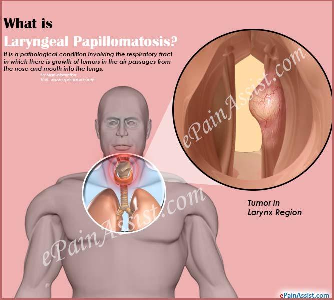 respiratory papillomatosis and its treatment