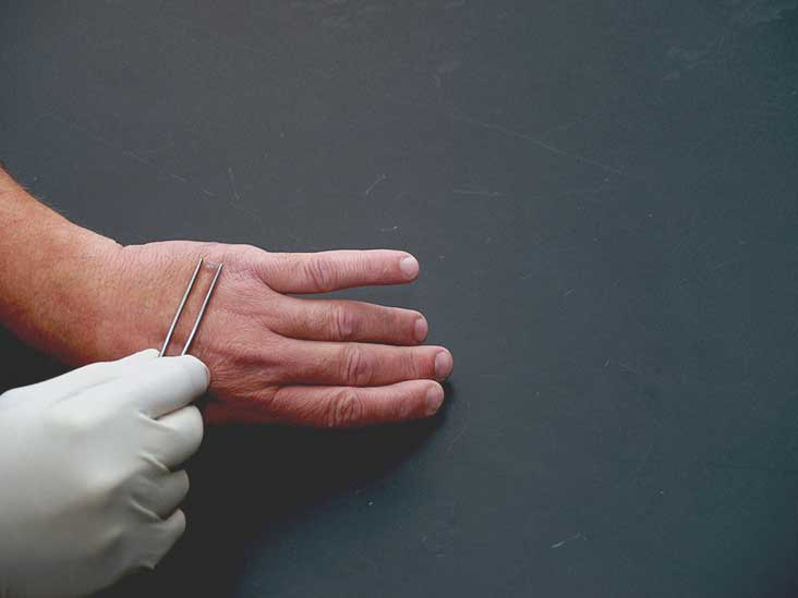 seed warts on hands removal