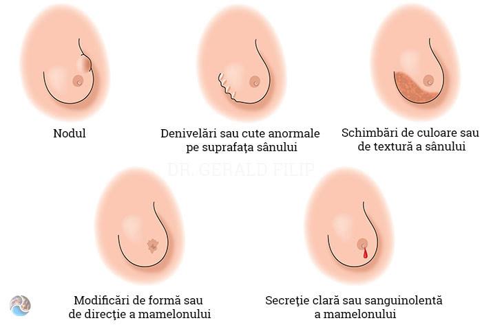 papiloma virus humano minsa ovarian cancer final stages