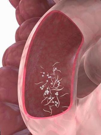 sintomas de oxiuros en mujeres