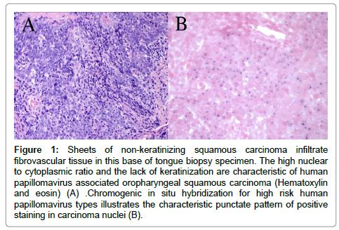 squamous cell papilloma biopsy)