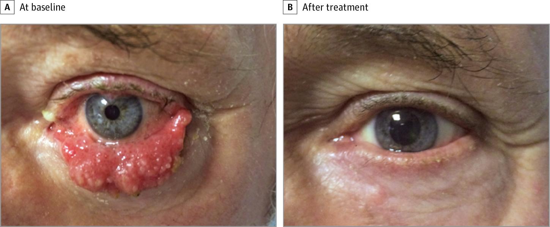 squamous cell papilloma eyelid