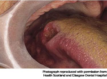 squamous papilloma tongue nhs