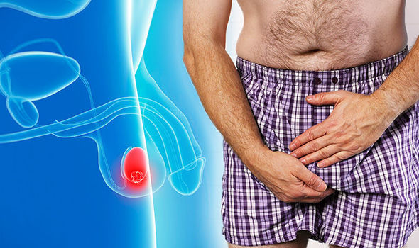 testicular cancer lower back pain