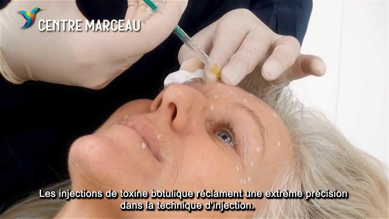 toxine botulique 12