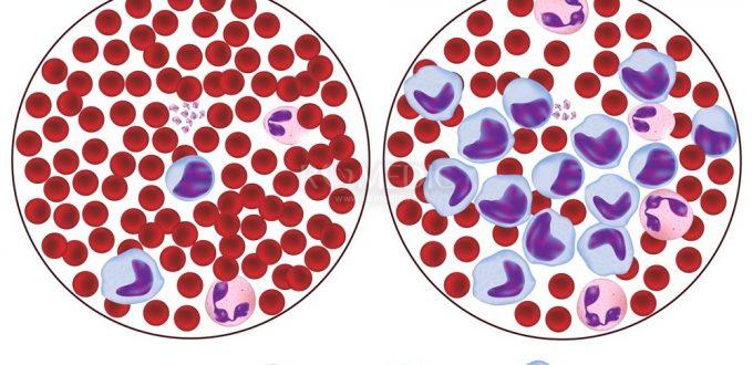 vindecare cancer sange