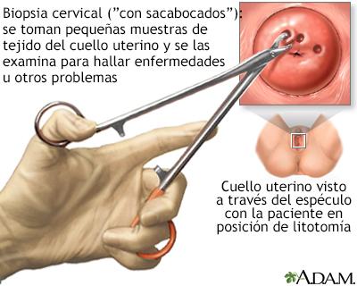 virus papiloma humano biopsia