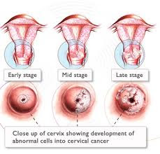 cancer piele benign metastatic cancer lymph nodes symptoms