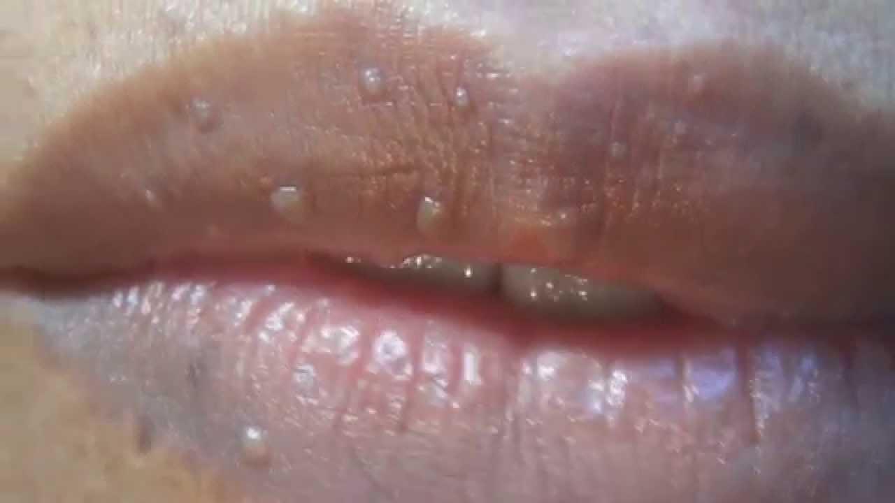 virus papiloma humano labios)