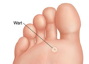 wart causing foot pain)