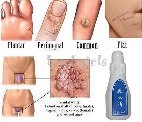 wart medicine on skin tags)