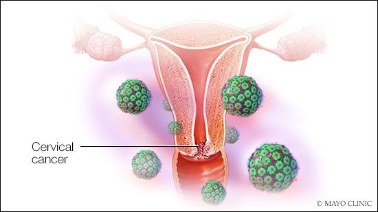 wart virus on cervix)