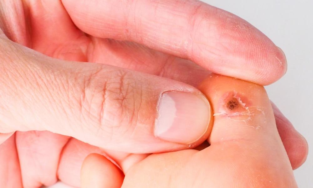 warts on inside skin)
